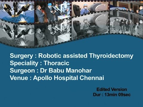 Robotic Assisted Thyroidectomy edited Version Dr Babu Manohar