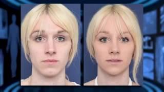 Video Facial Feminization Surgery - Interview Dr Bart van de Ven MP3, 3GP, MP4, WEBM, AVI, FLV September 2018