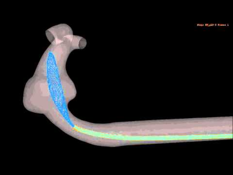 micro catheter - FEA based virtual deployment of a flow diverter (FD) into a patient specific fusiform intracranial aneurysm. Deployment procedure from the movie: After crimp...