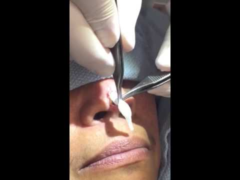 Revision Rhinoplasty Surgery Beverly Hills  | Board Certified Plastic Surgeon, Dr. D. David Saadat