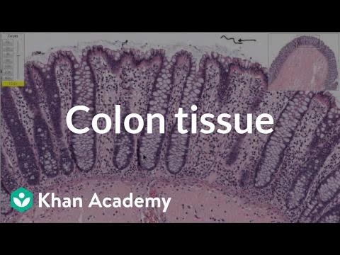 Healthcare and Medicine: Colon Disease