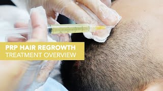 Video PRP + ACell for Hair Loss in San Francisco MP3, 3GP, MP4, WEBM, AVI, FLV Februari 2019