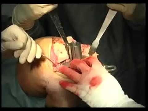 операция на тазобедренный сустав в алматы