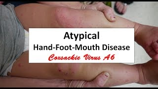 The atypical HFMD is back this year here in Augusta, Georgia.  It really does act and look differently than the typical Hand-Foot-Mouth Disease.  In this video we review the differences of the HFMD caused by Coxsackie Virus A6 (new kid on the block since 2012) to the Coxsackie A16 (the old-timer).