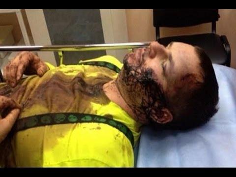 Майдан: Избитого Булатова будут лечить в Литве / A24