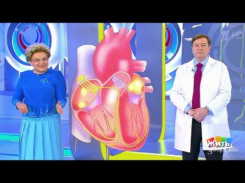 Жить здорово Консилиум по аритмии.(16.04.2018) - DomaVideo.Ru