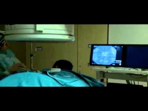 ameliyatsiz-bel-fitigi-tedavisi-nukleotomi-otomatik-fitik-bosaltma--1
