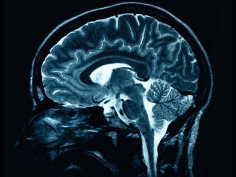 Gehirnreskonstruktion - Der nächste biomedizinische Durchbruch oder eine biologische Unmöglichkeit?