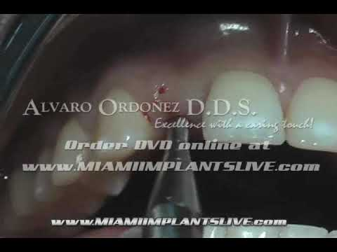 Comprehensive Implant Dentistry Live Training Courses at MiamiImplantsLive.com