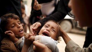 Por un mundo sin Polio...