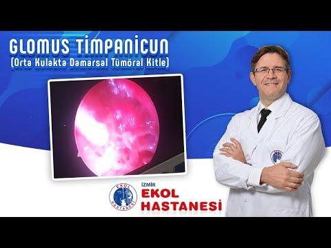 GLOMUS TİMPANİCUN (Orta Kulakta Damarsal Tümöral Kitle) - İzmir Ekol Hastanesi
