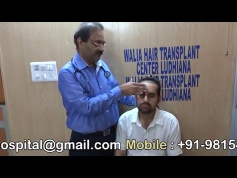 Front Hairline and anterior part of head hair transplant