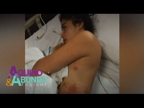 Anne Curtis Stung By Jellyfish During 'Dyesebel' Taping