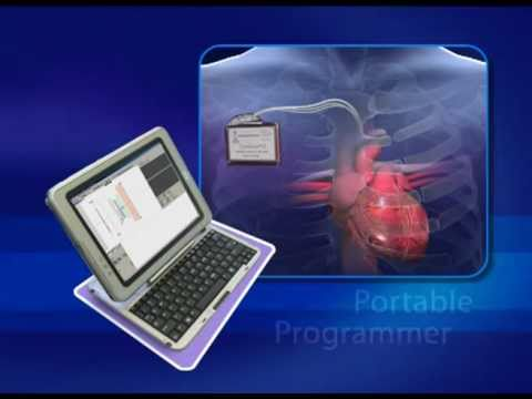 Chronic Heart Failure (CHF) treatment implantable device