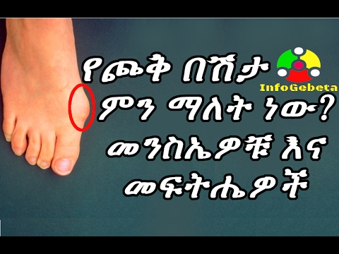 Bunion Causes, Symptoms, Treatment, and Prevention