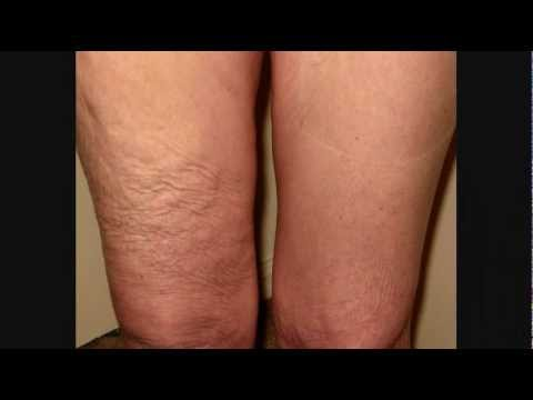 Skinnies Instant Lifts on Shark Tank! Get an Instant Arm, Thigh, Tummy & Hip Lift!