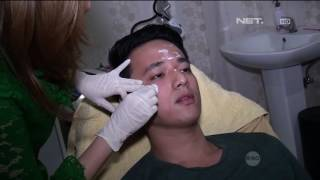 Video Demi Jaga Penampilan Billy Davidson Jalani Filler & Botox Wajah MP3, 3GP, MP4, WEBM, AVI, FLV Juli 2019