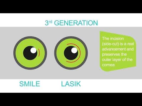 SMILE Laser Vision Correction explained