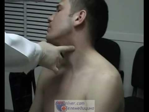 Временная остановка кровотечения из сонной артерии.flv