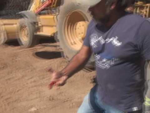 Secretário de obra da prefeitura de peixoto foi picado por uma cobra