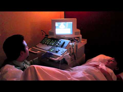 6 week ultrasound!