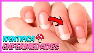 3 - Enfermedades de las uñas.