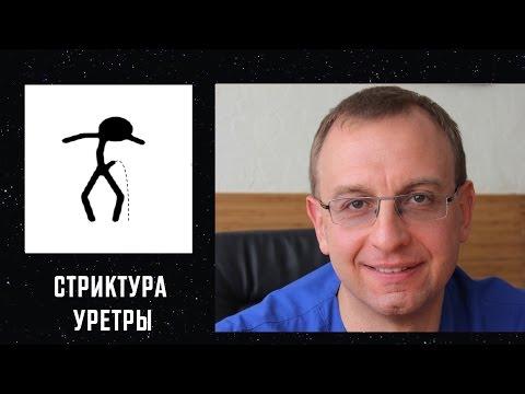 СТРИКТУРА УРЕТРЫ. Уролог, андролог, сексопатолог Алексей Корниенко.