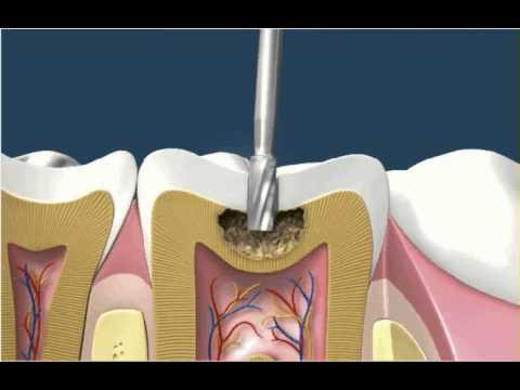 Dental Fillings White Amalgam 1