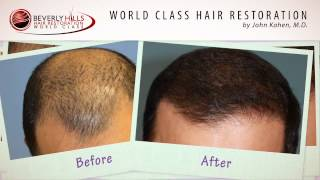 Hair restoration results video before and after