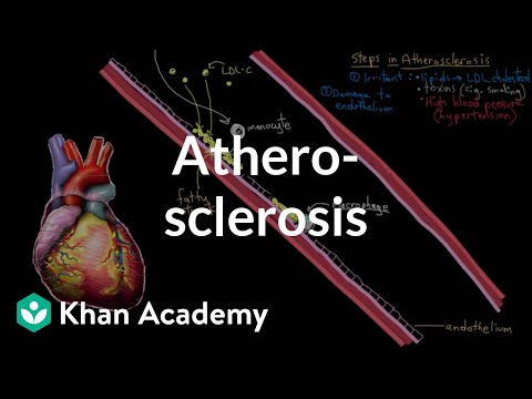 Atherosclerosis | Circulatory System and Disease | NCLEX-RN | Khan Academy