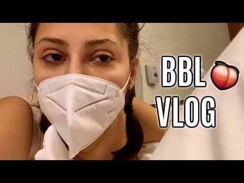 BBL JOURNEY PART 1 | VLOG
