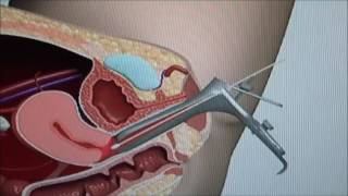 Pap Test Procedure