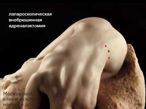 Инциденталома надпочечника. Лапароскопическая внебрюшинная левосторонняя адреналэктомия.