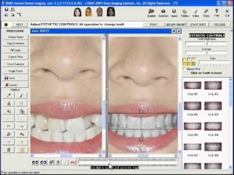 SNAP Dental Cosmetic Imaging Software SNAP