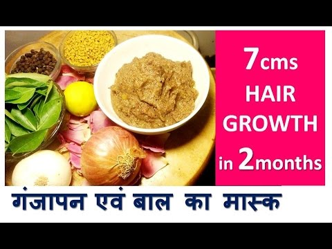 7cm in 2month HAIR GROWTH | काले लम�बे घने बालों के लि� | Stop HAIR LOSS - Baldness Hair Mask