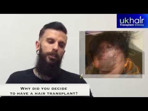 Hair Transplant - Patient John Craig talks about his experience with UK Hair Transplant Clinics