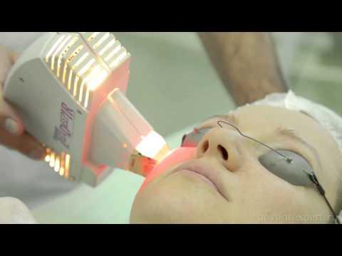 Лазерная косметология. Palomar. Говорит Эксперт