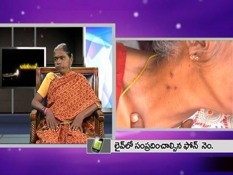 Siddula Lakshmi - Suffer Serious Kidney Disease