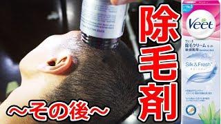 Video 除毛剤で髪が生えないので工夫してみたら再び事故w MP3, 3GP, MP4, WEBM, AVI, FLV Juli 2018