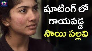 Actress Sai Pallavi Injuries At Shooting Spot