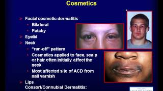 Contact Dermatitis (Luz Fonacier, MD)