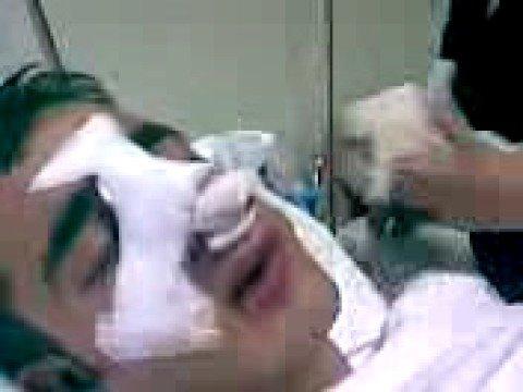 Septum Deviasyonu Ameliyatı İzle