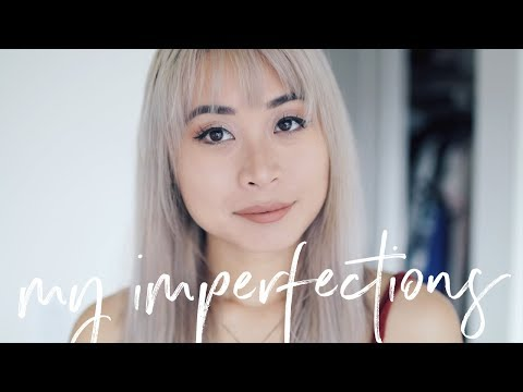 My Perfect Imperfections Tag | Biggest Flaws & Insecurities (видео)