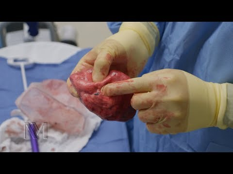 Robotic Lung Cancer Surgery | Inside the OR