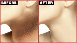 Watch More -  https://goo.gl/62tLVQHow To Get Rid Of Dark Neck? Want even toned fair neck?? I m sharing a  very DIY easy n quick 3 step treatment to get rid of dark neck n achieve a fair even toned neck.Don't forget to TAG & SHARE it with your friends.PRODUCTS SHOWN IN THIS VIDEO:---------------------------------------------------------STEP 1 SCRUBPure & Sure Organic Rice Flour, 1kghttps://goo.gl/hFK4QjWater'STEP 2 PACKJust  organik Gram flour 500gm, 100% Organic, GMO Free, Chemical Free, Pesticide Free, USDA Certifiedhttps://goo.gl/52MvuGCurdLemon JuiceKhadi Glycerine ( 250 Gms )https://goo.gl/P9c3sJSTEP 3 MOISTURISER Patanjali Aloe Vera Gel, 150 mlhttps://goo.gl/mHckd4Bio Organic Extra Virgin Coconut Oil 175mlhttps://goo.gl/9jXuNeDon't forget to TAG & SHARE it with your friends.~ Love♥ Pretty Priya ♥NEW UPLOADS every Monday & Friday!!▷ CONNECT with us!!♥ YOUTUBE - https://www.youtube.com/PrettyPriyaTV♥ FACEBOOK - https://www.facebook.com/PrettyPriyaTV/♥ TWITTER - https://twitter.com/PrettyPriyaTV♥ INSTAGRAM - https://www.instagram.com/PrettyPriyaTV/♥ SNAPCHAT - @PrettyPriyaTV ♥ BUSINESS INQUIRY - PrettyPriyaTV@gmail.comAUDIO DISCLAIMER/CREDITS –The background music is either taken from royalty free site and/or from the below sources under proper usage licence specified below –DISCLAIMER: The information provided on this channel and its videos is for general purposes only and should NOT be considered as professional advice. dry skin natural home remedies hyperpigmentation black neck PrettyPriyaTV,dark neck,get rid of dark neck,black neck,hyperpigmentation,dark skin,how to get rid,skin care,dry skin,health tips,sun tan,pigmentation,body polishing at home,how to get fair body skin,body polishing,dark neck whitening,how to get rid of dark neck,body scrub,skin pigmentation,in hindi,pigmentation treatment at home,flawless skin,skin polishing,body polishing treatment at home,body polish,skin whitening,natural home remedies