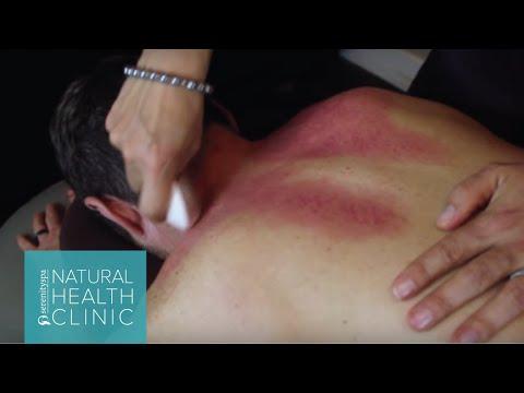 gratis download video - Acupuncture-Gua-Sha