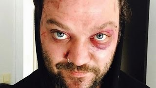 Video The Real Reason We Don't Hear From Bam Margera Anymore MP3, 3GP, MP4, WEBM, AVI, FLV Agustus 2018