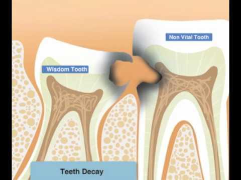 20 Yaş Diş Problemleri