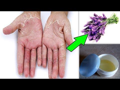 العرب اليوم - بالفيديو: أحدث وصفة لعلاج الإكزيما والحكة الجلدية