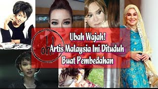 Video Ubah Wajah! Artis Malaysia Ini Dituduh Buat Pembedahan MP3, 3GP, MP4, WEBM, AVI, FLV September 2018